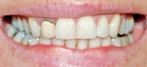 Invisalign braces nov 10