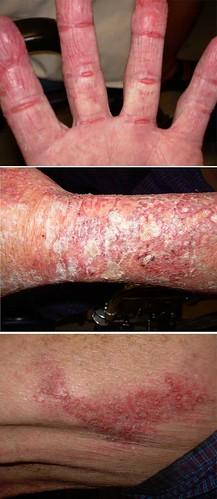 Allergic contact dermatitis (neomycin)