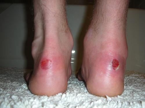 heal blisters fast on feet f f   2016