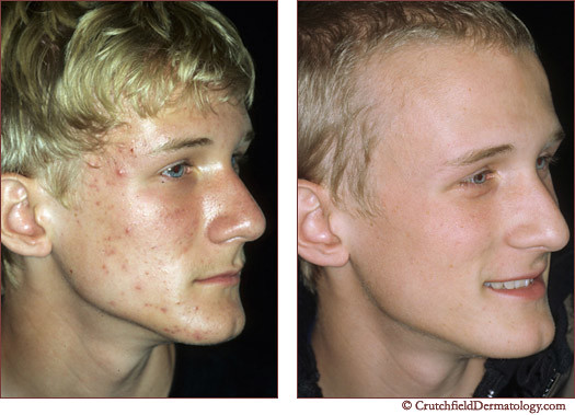 Acne laser treatment on fair young man: before & after ...