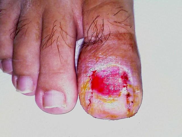 nail avulsion