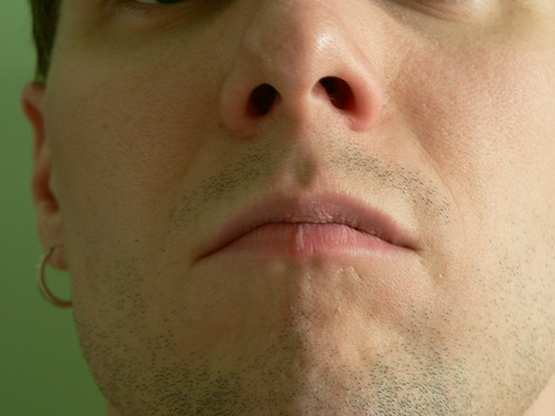 Burnt Lip