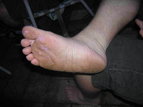 Jeff's disgusting foot