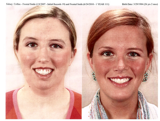 Before & After Surgery | Flickr - Photo Sharing!