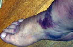 Bruised leg & foot
