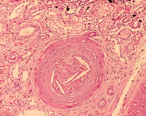 Cholesterol emboli