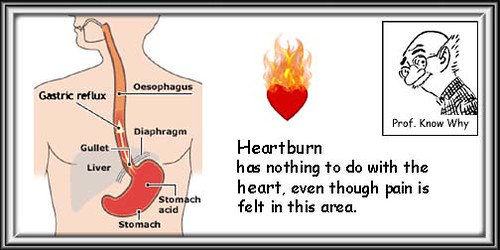 Heartburn Gas Heart Attack