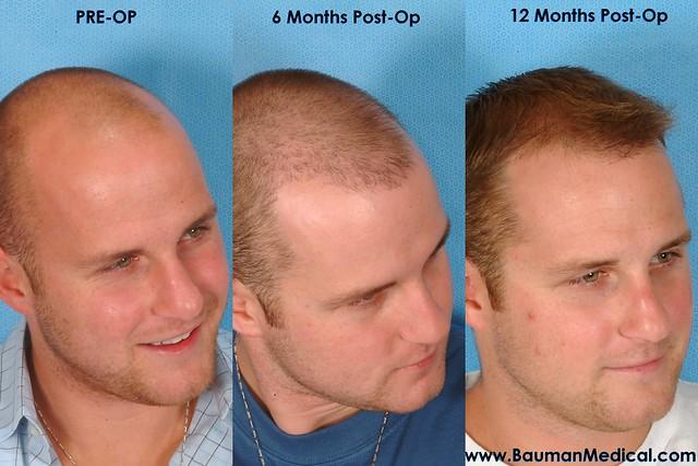 Пересадка волос на голове у мужчин отзывы
