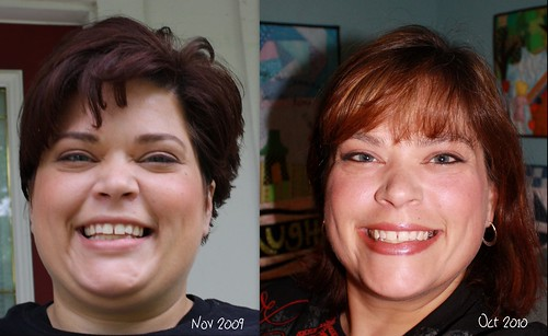 Weight Loss - Face