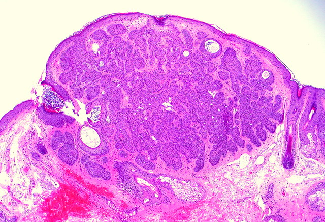 Trichoepithelioma Flickr Photo Sharing