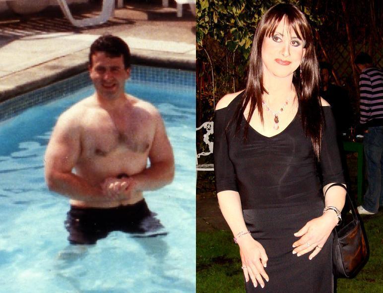gender reassignment hormones female to male