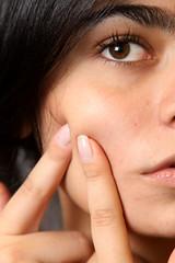 フォトフェイシャルには、肌のターンオーバーを正常化させる働きがあります