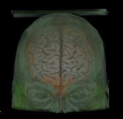 arm(0.0), chest(0.0), face(0.0), head(0.0), medical(0.0), human body(0.0), brain(1.0), organ(1.0),