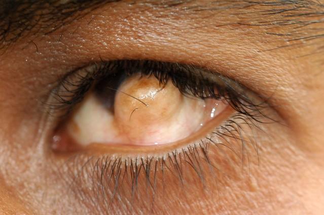 Limbal Dermoid | Flick... Dermoid Cyst Eye