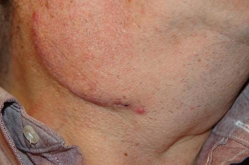 TONSIL CANCER SYMPTOMS  CANCER SYMPTOMS   Tonsil Cancer