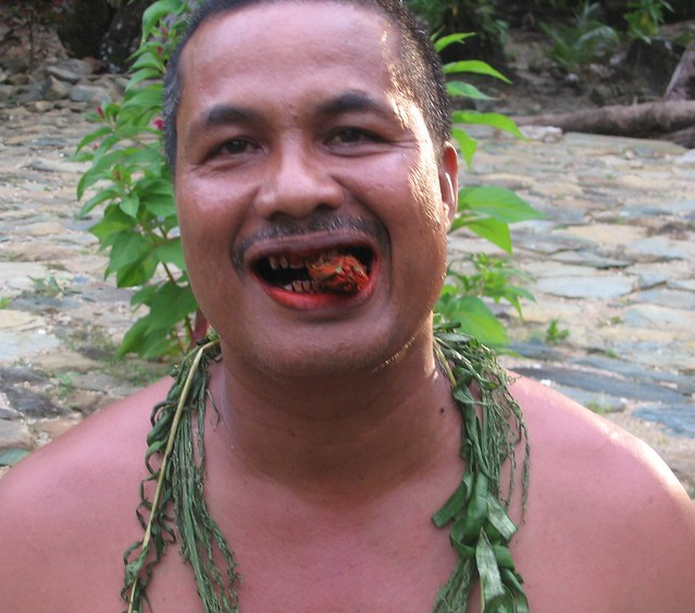 Betel stained teeth