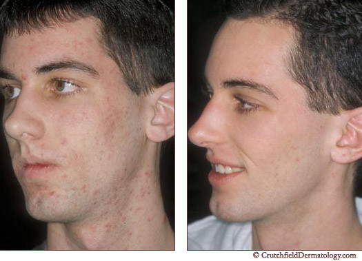 circumcision before and after - photo #8