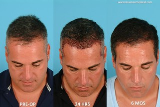 NeoGraft Hair Transplant Results JS5 | by Dr_Alan_Bauman