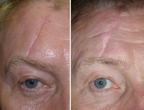 Facial Scars 1 005 4