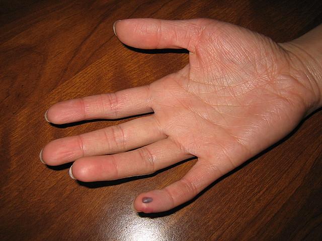 Fingerquetschung