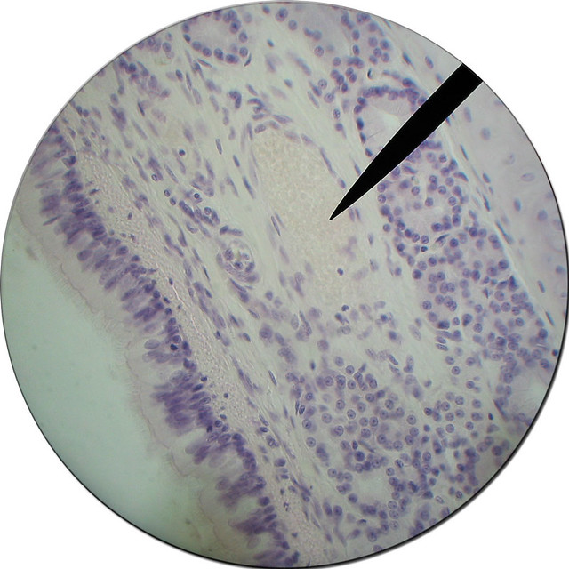 Trachea Histology | Flickr - Photo Sharing!