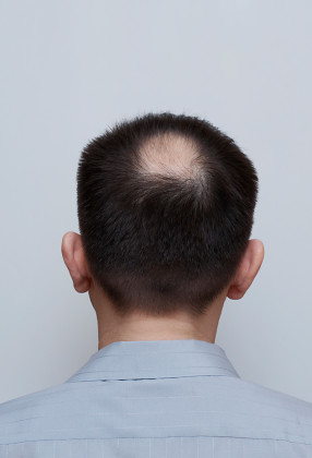 Pictures of Latest Hair Loss Tv