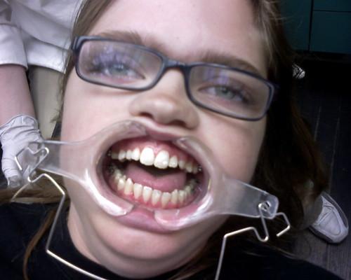 Zoe gets braces