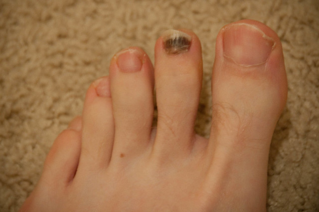 melanoma on toenail