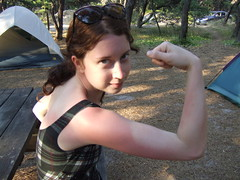 Burning muscle, Sarah Stambaugh muscle and sunburn