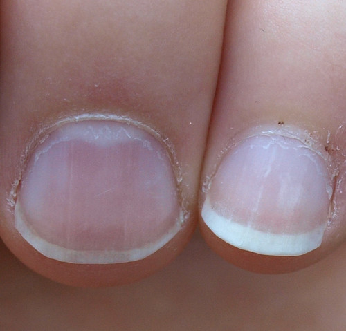 Fingernails Can Tell Tales | Wendy Stedeford's Acupuncture ... B12 Deficiency Nails