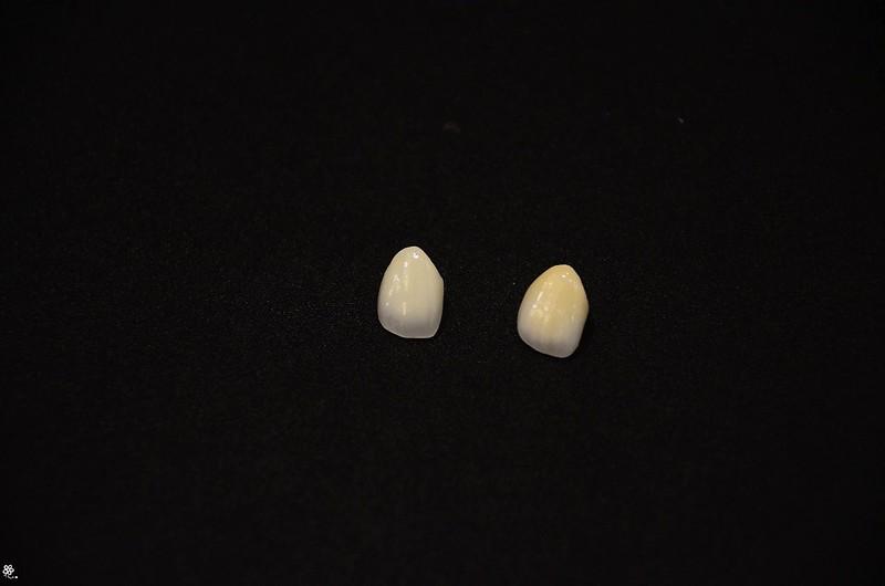 竹北真美牙醫診所-舒眠植牙中心 (44)