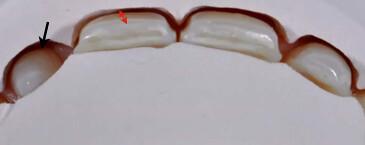 陶瓷貼片也可以試用?台中權泓牙醫黃泓傑醫師這樣說! (6)