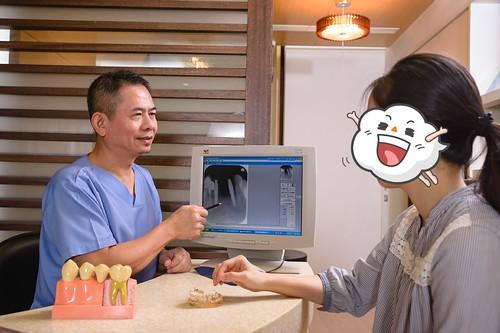 台南植牙推薦‧台南人都愛去的佳美牙醫植牙心得分享 (10)