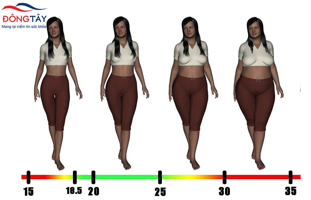Phụ nữ béo phì có nguy cơ cao mắc sỏi mật