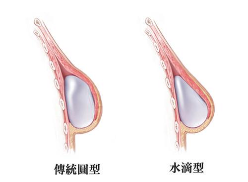 5_美妍醫美水滴隆乳-傳統圓形vs水滴型示意圖