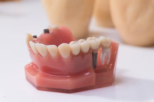 [推薦] 台南遠東牙醫植牙 原來好的人工植牙是看不出來的!04