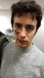 Francesco Romito dopo il pestaggio subito