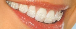 aparat ortodontic invizibil