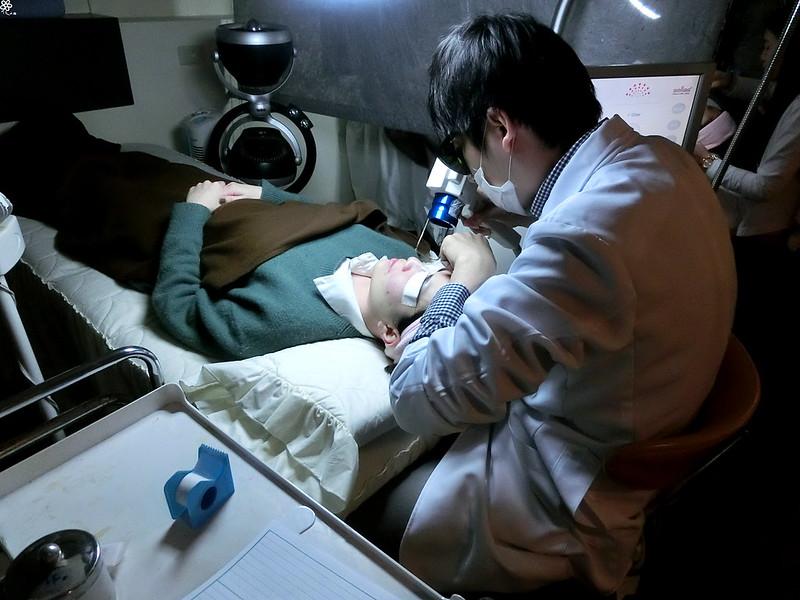 美麗晶華診所台北醫美推薦飛梭紅寶石雷射 (7)