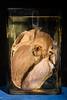 Subacute bacterial endocarditis