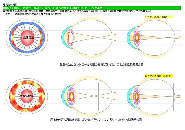 視力回復のために知りたい眼のメカニズム用図01〜視力回復のために知りたい眼のメカニズム|自分まとめその1|眼(内眼中心)の基本構造、神経経路と神経系のメカニズム|真・視力回復法〜視力回復コア・ポータル