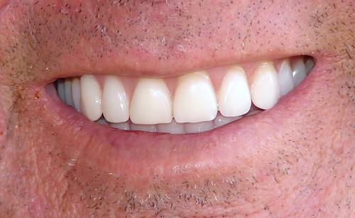 Kedvezményes szállítás ajánlunk a dentálhét keretében.