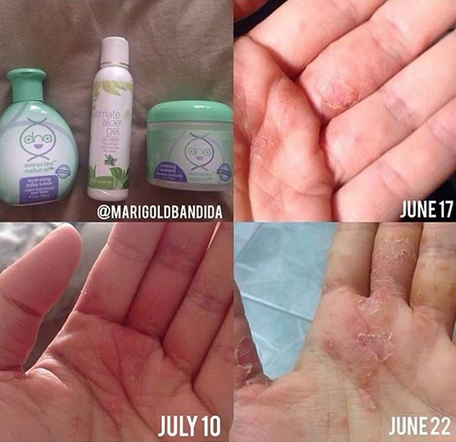 before and after results of dry hands using DNA Miracles Soothing Ointment