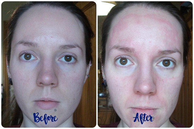Turbliss Bioactive Mask Before After
