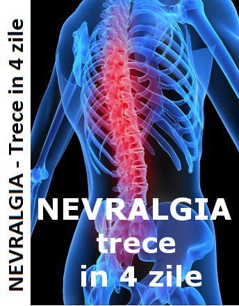 Nevralgia intercostala durerea iradiaza de la coloana catre lateral si anterior