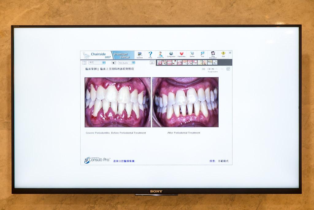 台南遠東牙醫林孟儒醫師專訪:牙醫不只可以醫牙,也可以醫美  (11)
