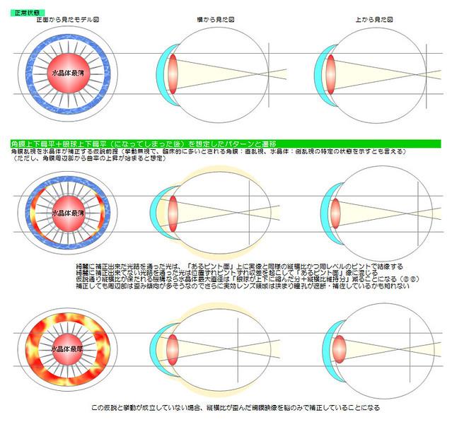 乱視のメカニズム図解パターン04〜乱視があると毛様体筋可動範囲が急速に狭まり視力低下が加速する?|真・視力回復法〜視力回復コア・ポータル
