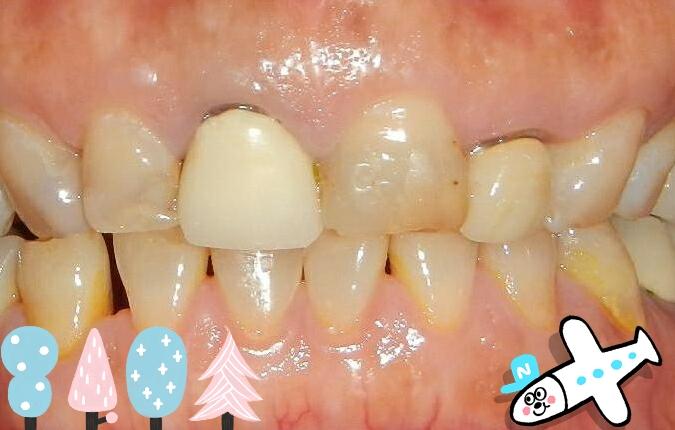 白牙萬事順,一切都要從到人本自然牙醫做牙齒美白陶瓷貼片說起_0308_01 (3)
