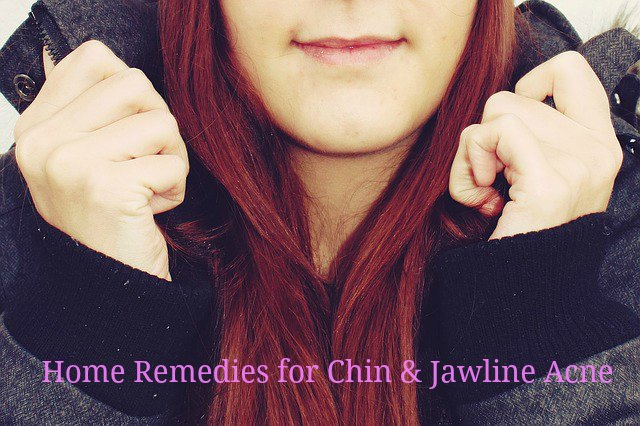 Chin acne Jawline Acne Causes home remedies