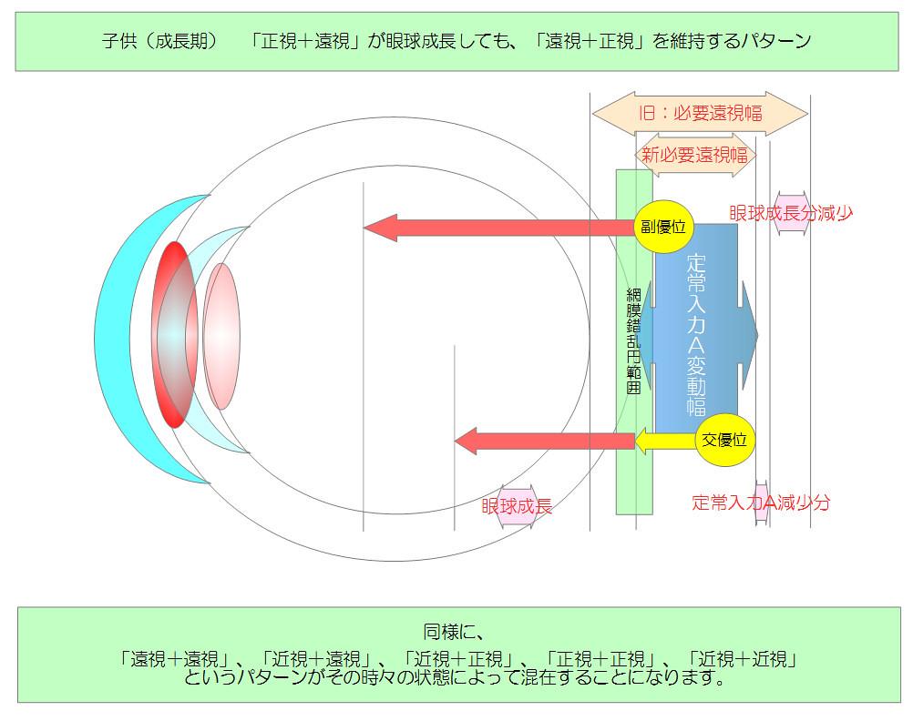 視力回復のために知りたい眼のメカニズム|独自まとめその10用04|子供(成長期)(正視+遠視)が眼球成長しても維持されるパターン|真・視力回復法|視力回復コア・ポータル